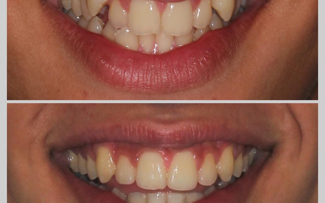 Caso 1 Ortodontia
