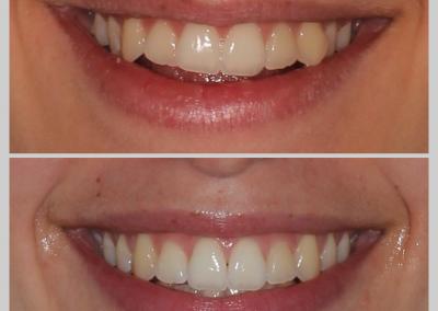 Caso 2 Ortodontia