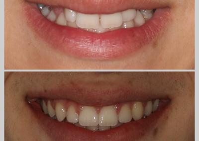 Caso 3 Ortodontia