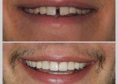 Caso 5 Ortodontia